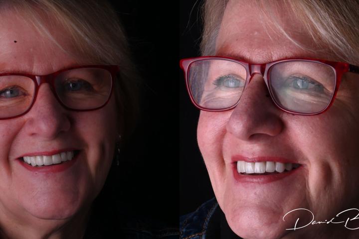 teeth on implants smile