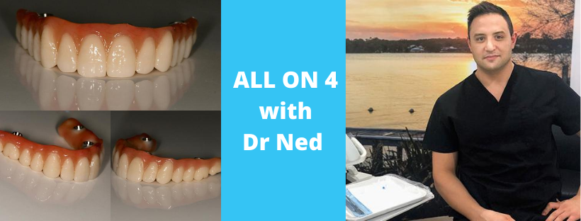 All on 4 Q + A with Dr Ned Restom