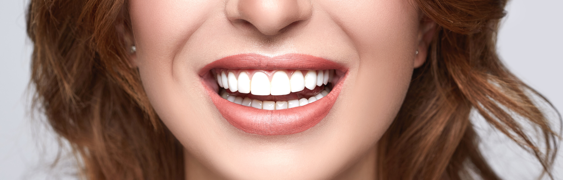 dental implants lake macquarie
