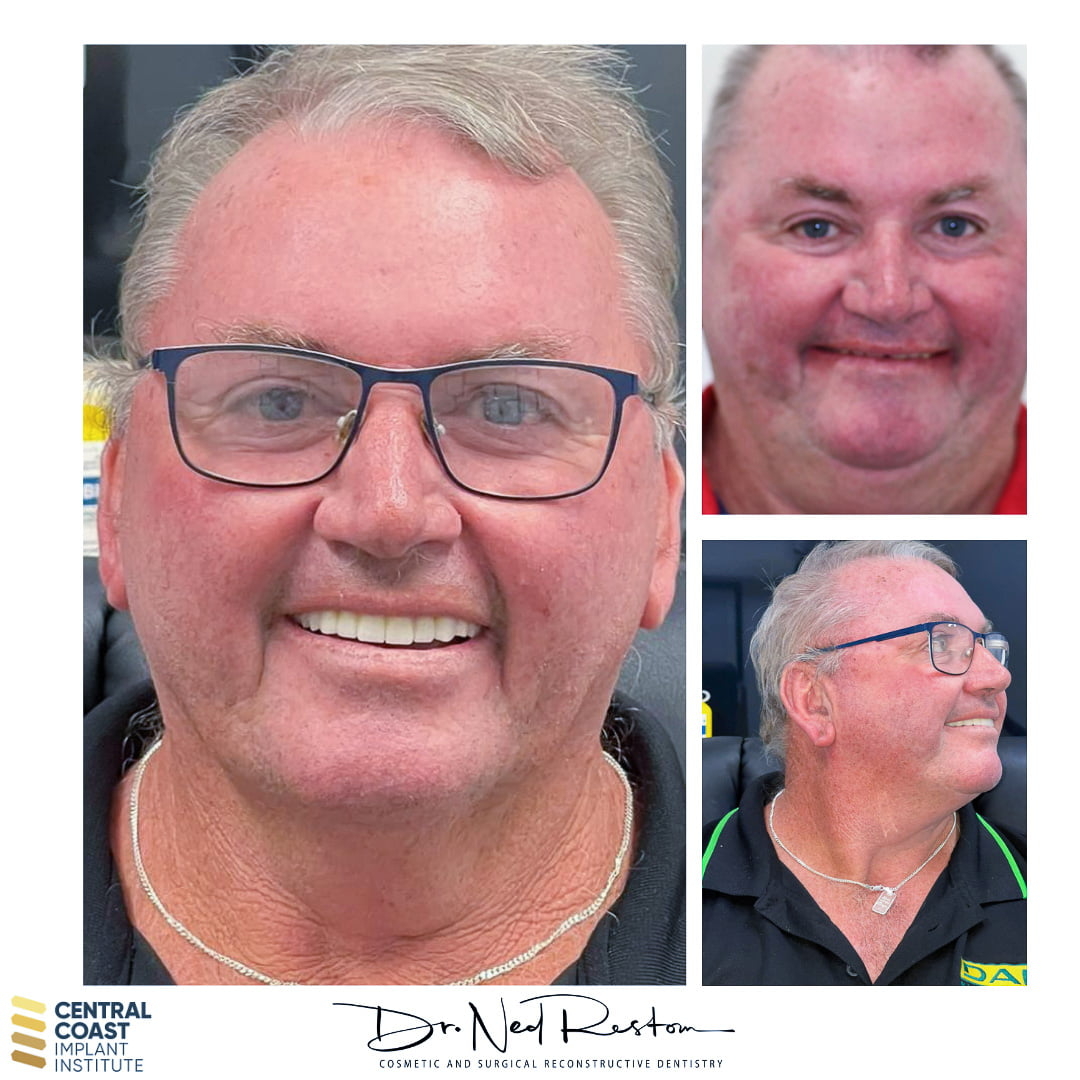 TEETH ON IMPLANTS® - Barry - Before and After