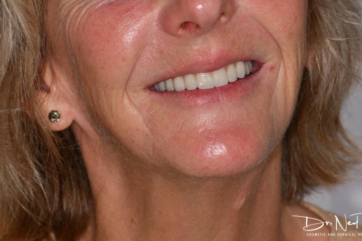 teeth on implants lady
